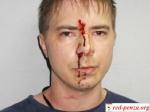 В Кемерово начался суд над блогером, избитымполицейскими